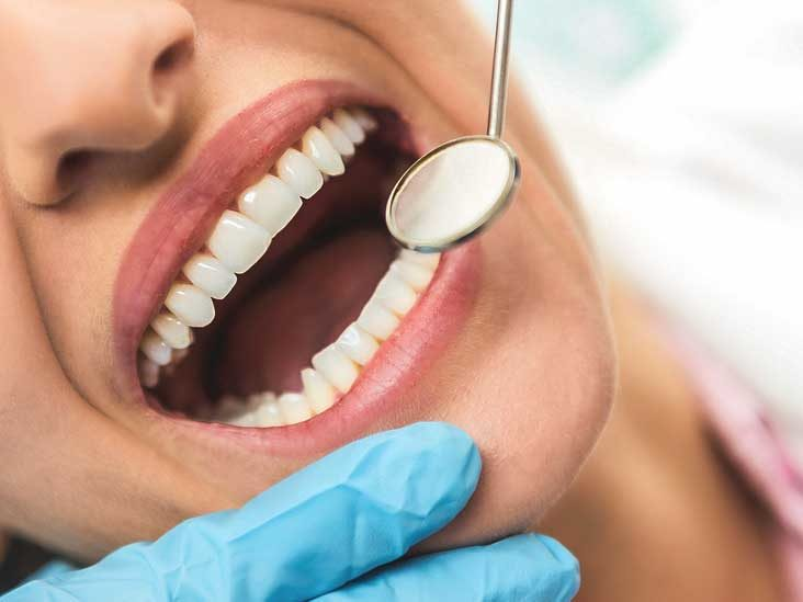 What Is Enamel Decay And How It Can Be Prevented?